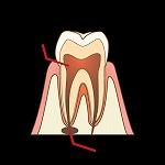 歯の根(根管)の治療の流れ