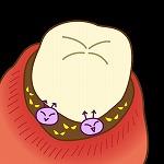 歯周病菌 歯科の吸血鬼 Pg菌の話